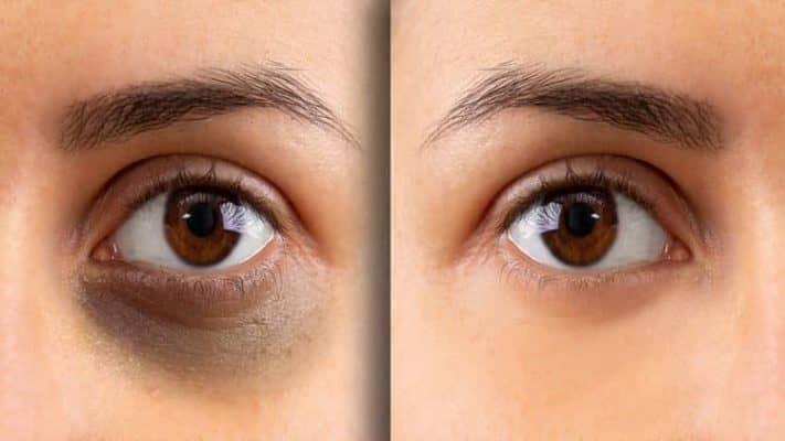 علل سیاهی زیر چشمها چیست ؟
